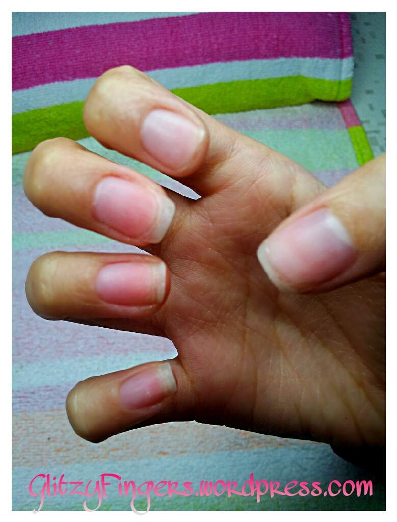 Glitzy Fingers : Nails After Gelish Removal